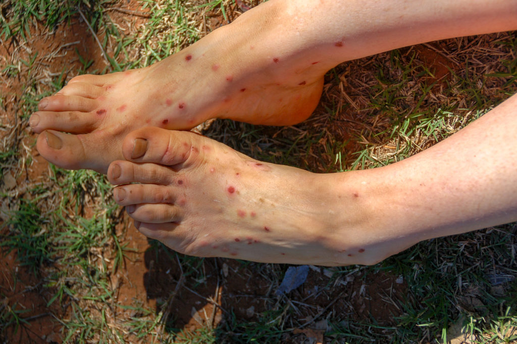 Feet and legs of a woman with midge bites, bitten by hundreds of midges in Western Australia