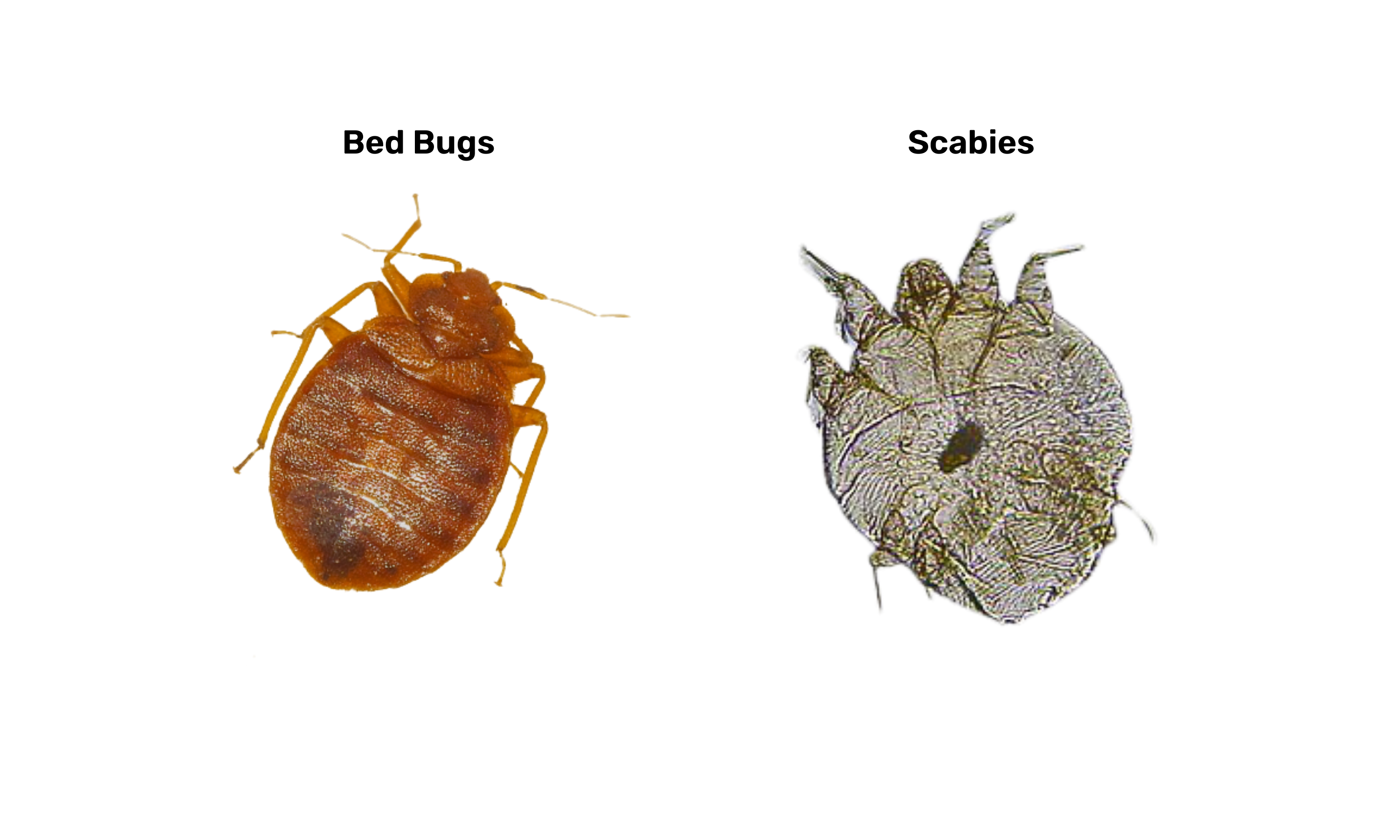 scabies vs bed bugs
